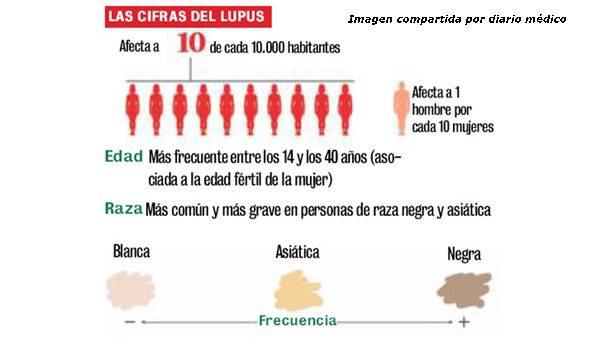 Dibujo de las cifras del lupus